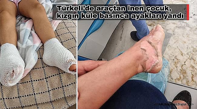 Türkeli'de araçtan inen çocuk, kızgın küle basınca ayakları yandı